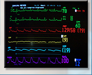 "the proper technique of administration iv therapy 96409 chemotherapy administration intravenous, push technique,  96367 intravenous infusion, for therapy,  2 responses to ""coding chemotherapy administration""."